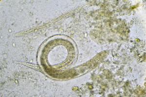 nematodi-microscopio-by-jarun011-fotolia-750