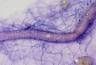 micelio-extraradicale-micorriza-by-manuela-giovannetti-universita-pisa