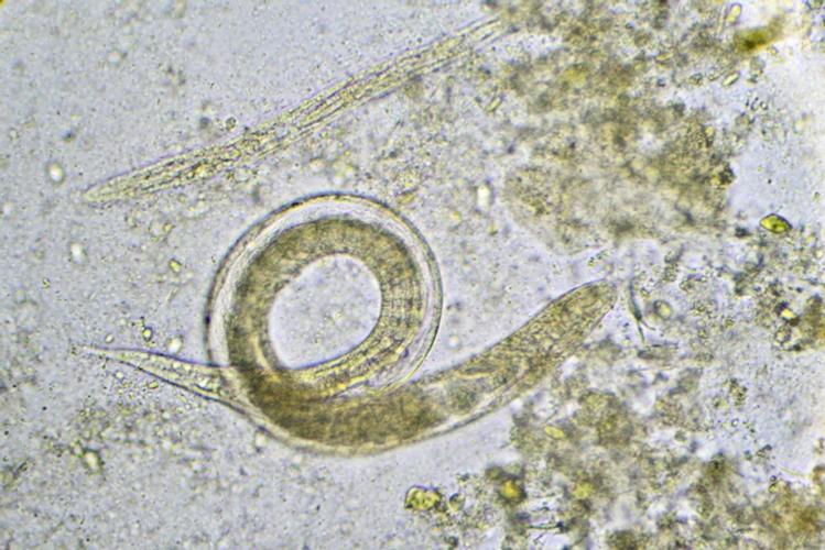 nematodi-microscopio-by-jarun011-fotolia-750.jpeg